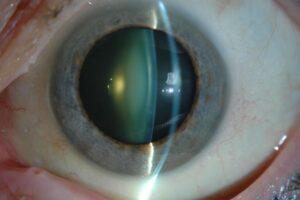 Un ojo que sufre cataratas, el cristalino tiene menos transparencia de lo normal