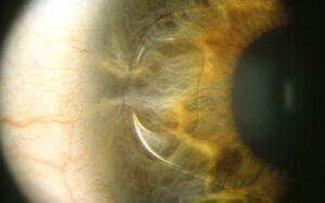 cirugia refractiva con lente intraocular