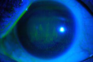 Un ojo con síndrome del ojo seco.