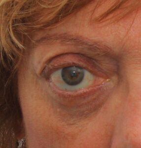 orbitopatia tiroidea